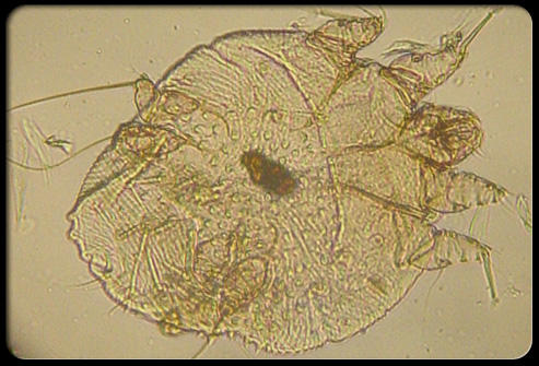 Scabies in Adults: Condition, Treatments, and Pictures ...